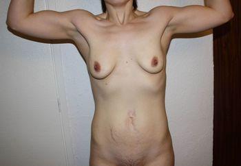 Mild body