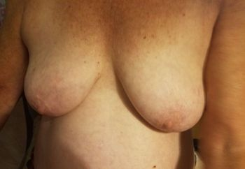 My Exes Breasts