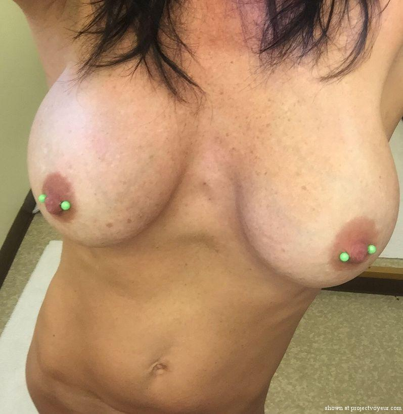 Topless tanning - image4